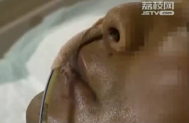 He had to fight for his life in the ICU. Credit: Jiangsu Television