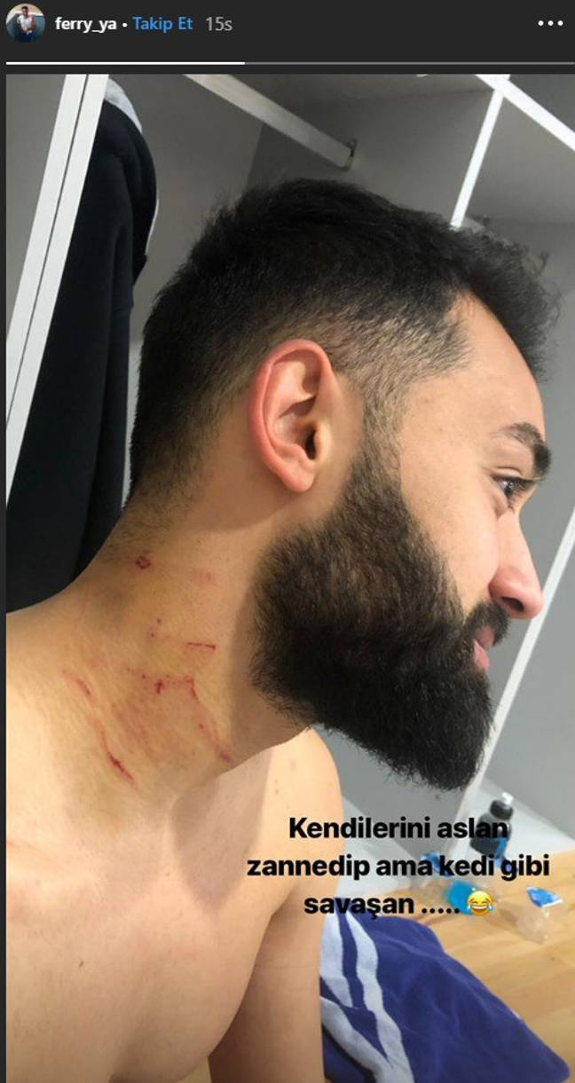 Yazgan shared a photograph of the alleged attack to his Instagram page. Credit: Instagram