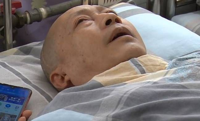 Li was in a coma for five years following a road traffic accident. Credit: Pear