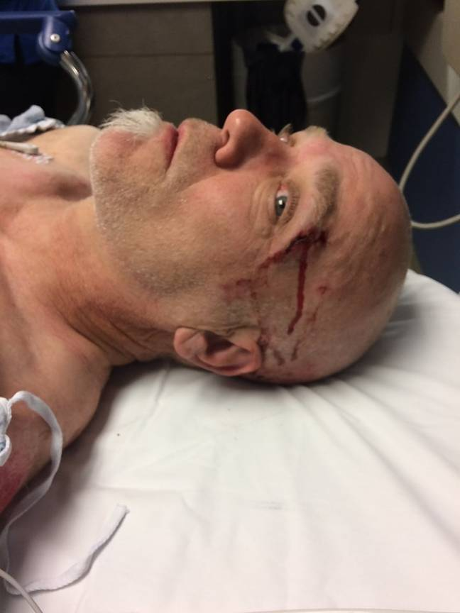 Bob Burdett suffered a hard fall from his moutain bike. Credit: Facebook/Gabe Burdett