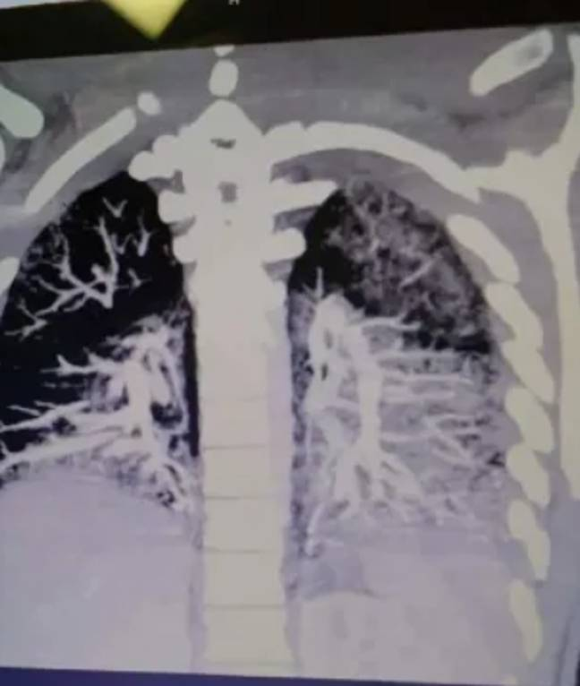 His dad Keith Mayo is now sharing the X-rays to encourage others to quit vaping. Credit: Keith Mayo