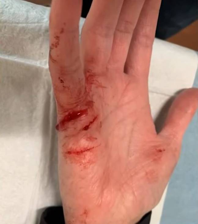 Silver Taylor's injury. Credit: ABC/KVUE
