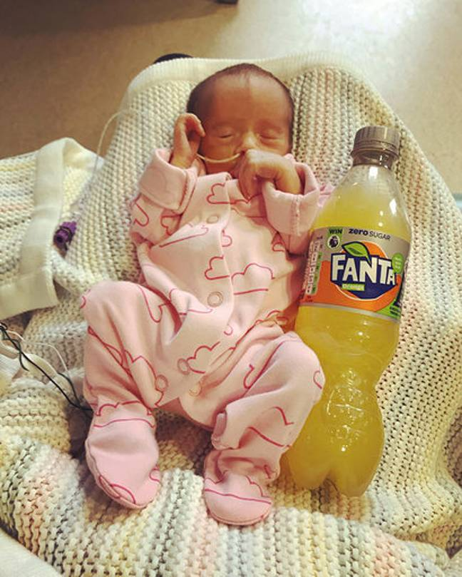 The twins were a similar size to a bottle of Fanta. Credit: Mercury Press