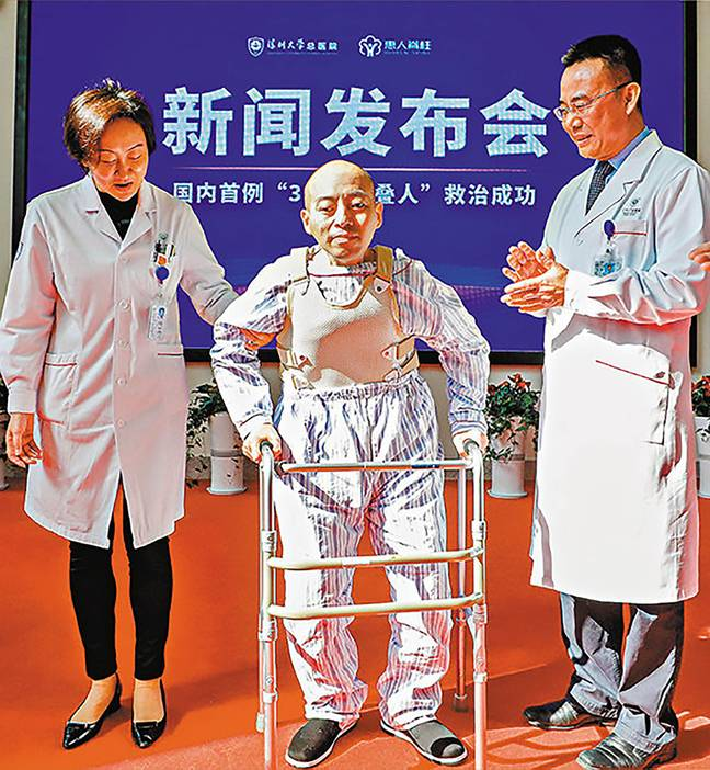 Li Hua standing straight for the first time in 28 years following his surgeries. Credit: Asia Wire