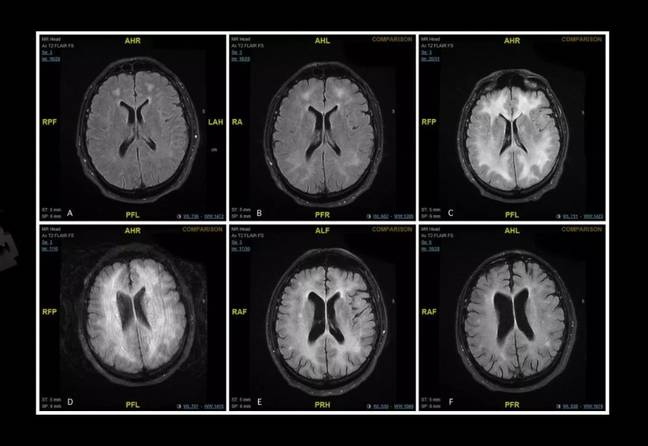 The brain scans show the white matter in the brain being damaged. Credit: BMJ
