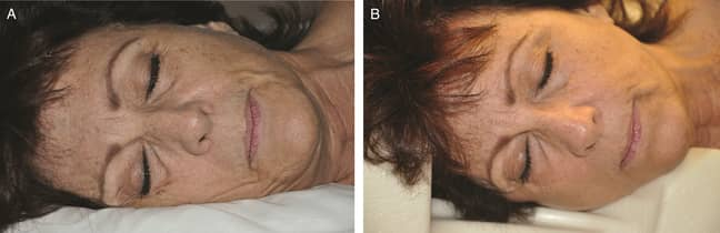 It's tough to change how you like to sleep, though. Credit: Aesthetic Surgery Journal
