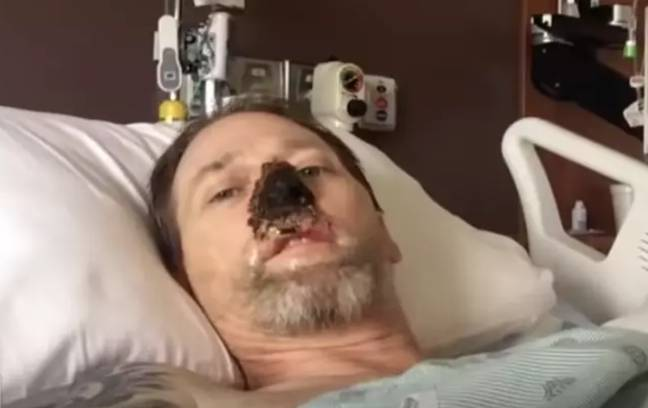 Greg has lost part of his nose to the infection. Credit: CBS