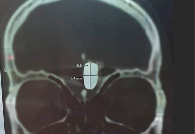 The bullet inside Mr Krutov's head. Credit: East2West