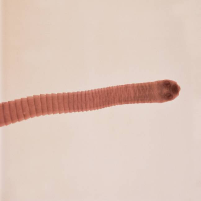 A close up of a tapeworm. Credit: PA