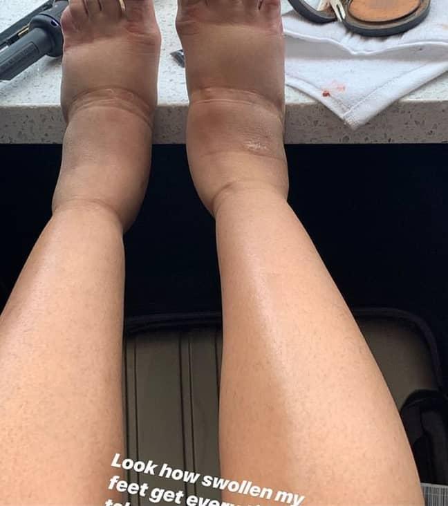Cardi B revealed her swollen feet on Instagram. Credit: Instagram/Cardi B