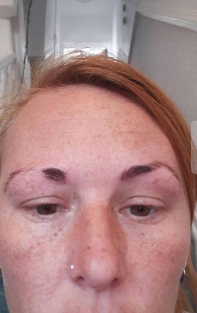 Colline said it took her eyebrows nine months to recover. Credit: Triangle News