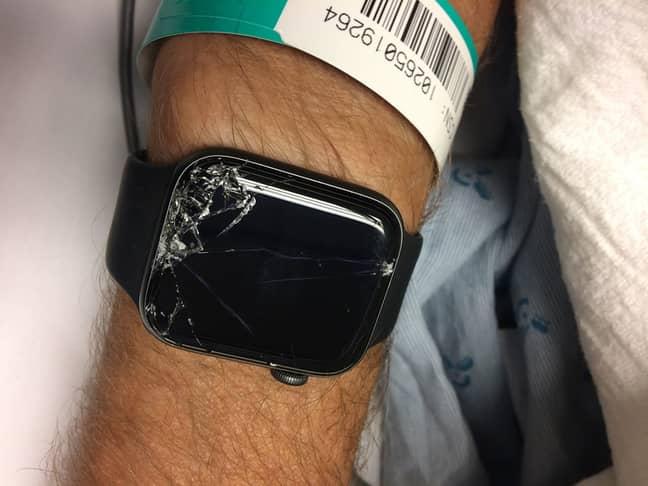 Bob's Apple Watch. Credit: Facebook/Bob Burdett