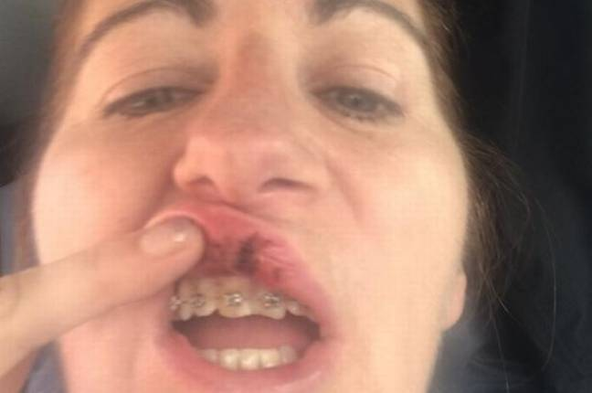 She had to have her teeth rewired. Credit: Teesside Live