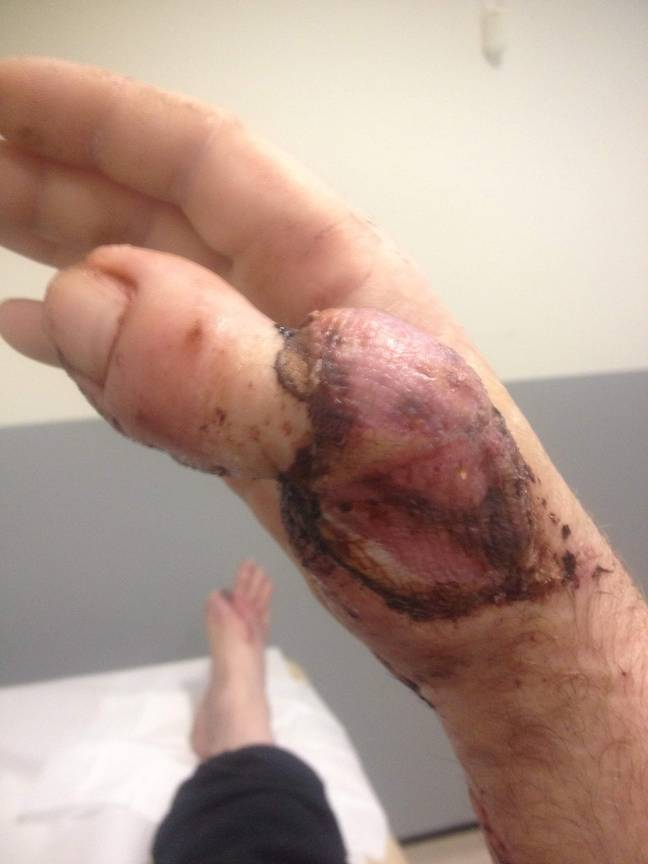David's thumb was ripped off in an accident at work. Credit: SWNS