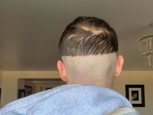 Matt was one of many who tried to get the perfect skin fade. Credit: SWNS