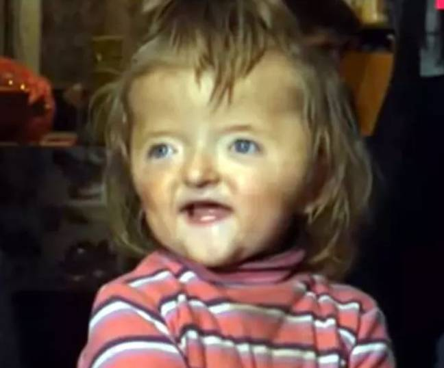 The parents of Sofya Zakharova were told that their daughter's deformed skull would scare other children. Credit: CEN
