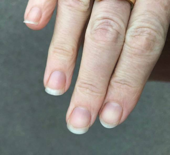 Lou's nails now after years of biting them. Credit: PA Real Life