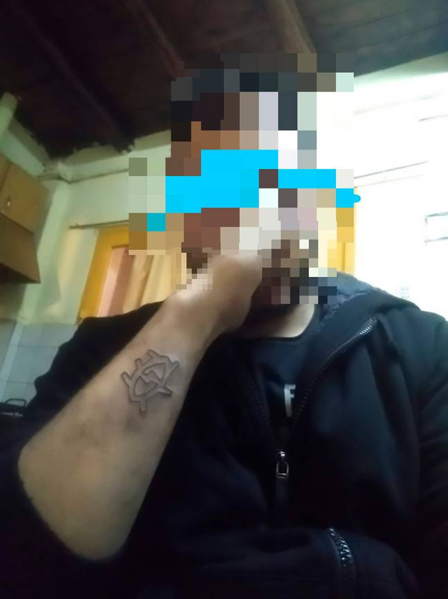 Matias no longer wanted his tattoo, just a week after getting it. Credit: CEN