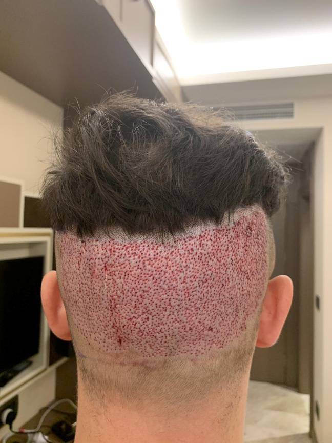 Surgeons, he says, took too much from the back, leaving him with a bald patch. Credit: SWNS