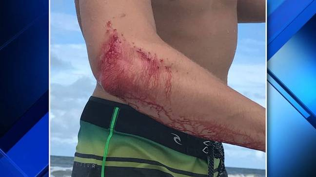O'Rourke headed straight to the bar with his bloodied elbow. Credit: WJXT