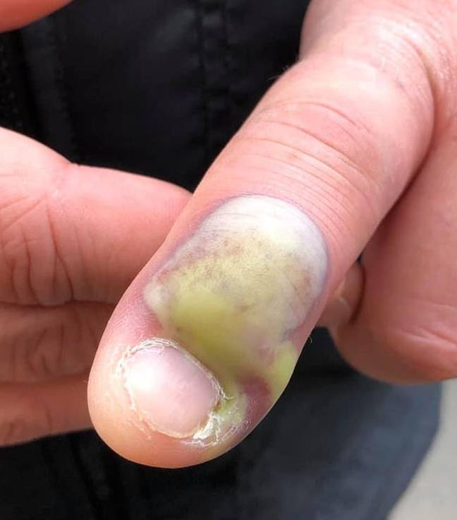 A woman has warned people not to bite their fingernails. Credit: Facebook