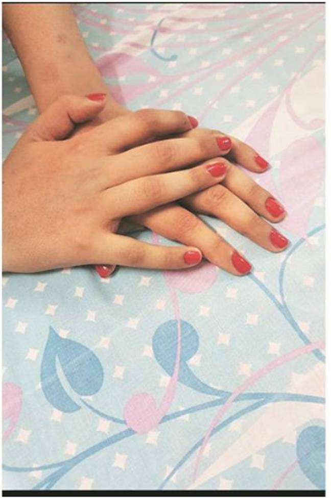 Shreya's hands now. Credit: Arul Horizon