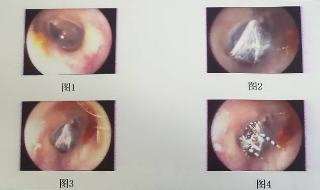 A spider and its web found inside the female patient's ear. Credit: AsiaWire/Mianyang TCM Hospital