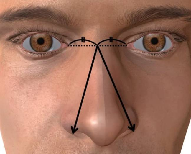Nose size was defined as the longer distance between the midpoint of the left and right medial ocular angles and the outside of the left or right nose wings. Credit: Basic and Clinical Andrology