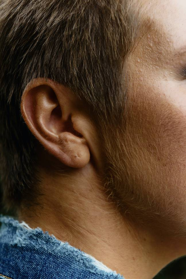 The NHS recommends 2 to 3 drops of medical grade olive or almond oil in your ear twice a day for a few days to clear earwax. Credit: Pexels/Ksenia Chernaya