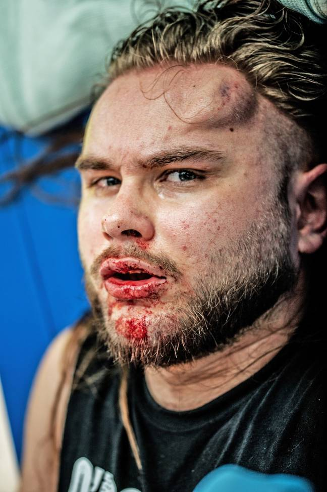 Danny says he and his band of misfits put their lives on the line for the sport, and they have the scars to prove it. Credit: Tony Knox