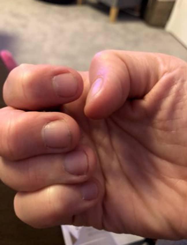 Lou's nails before she kicked the life-long habit. Credit: PA Real Life