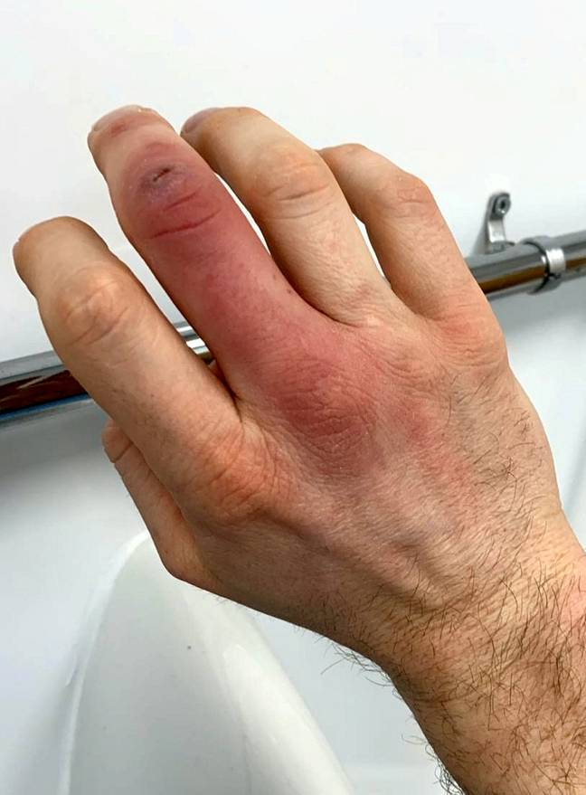 Steve's finger and hand went red and swollen. Credit: SWNS