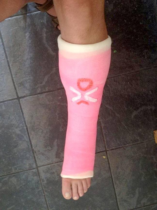 Darren Jones' cast when he damaged his ankle. Credit: Storytrender