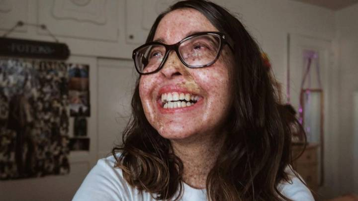 Woman Allergic To Sunlight Has Been Diagnosed With Cancer 28 Times