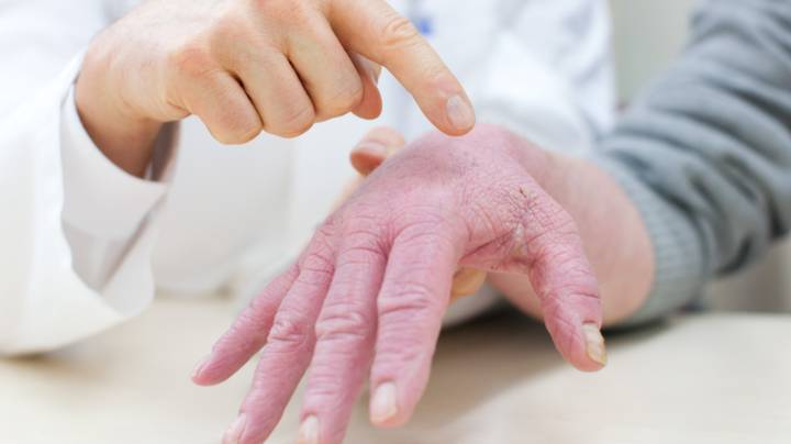 Doctor Explains Why Eczema Gets Worse At This Time Of Year