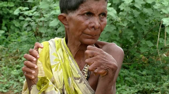 Woman Born With 20 Toes And 12 Fingers Says People Think She's A Witch