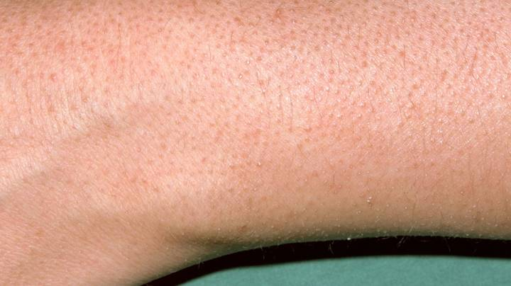 TikTok Doctor Explains What The 'Weird Red Bumps' On People's Arms Are