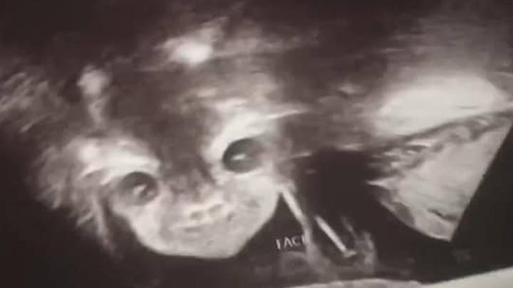Pregnant Mum Shocked As Scan Reveals 'Devil Baby' Staring Back At Her