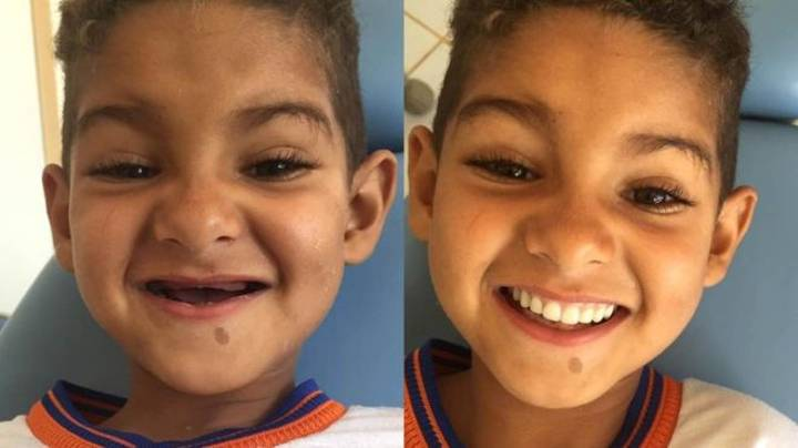 Boy From Brazil Gets New Set Of Teeth And He Can't Stop Smiling About It