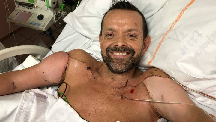 Man Fitted With Incredible Donor Arms In First Double Transplant