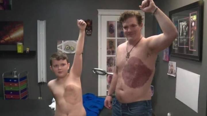 Dad Spends More Than 30 Hours Getting Tattoo Of Son's Birthmark To Help Him Feel Less Self-Conscious
