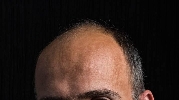 New Stem Cell Solution Triggers Hair Regrowth In People With Male Pattern Baldness