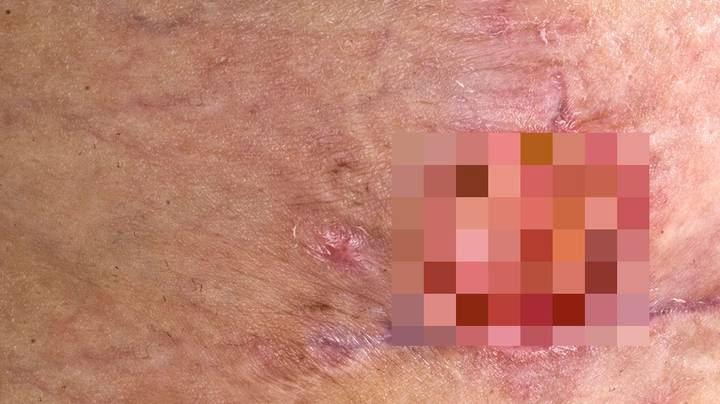 Inner Melbourne Put On Alert After Skin-Eating Bacteria Discovered For The First Time