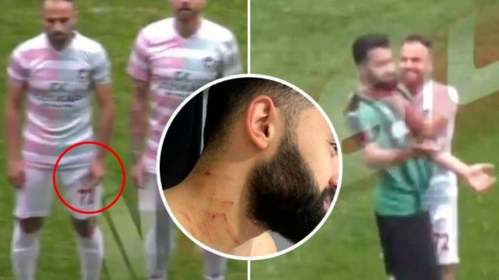 Shocking Footage Shows Footballer Attacked With 'Razor Blade'