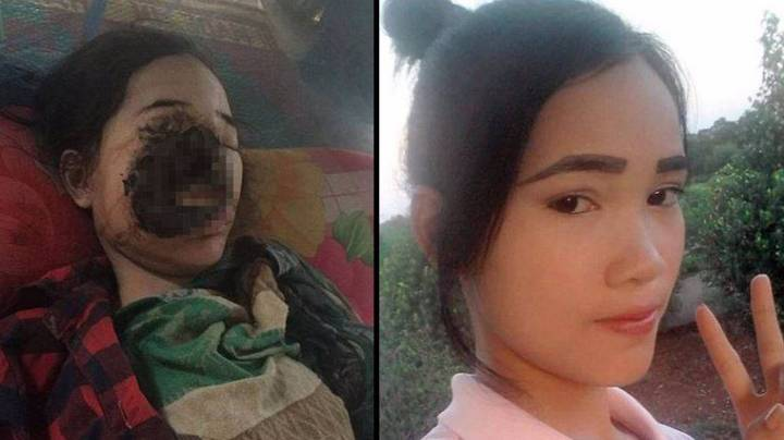 Teenage Girl's Face Ruined By Flesh-Eating Bug After Visiting The Dentist