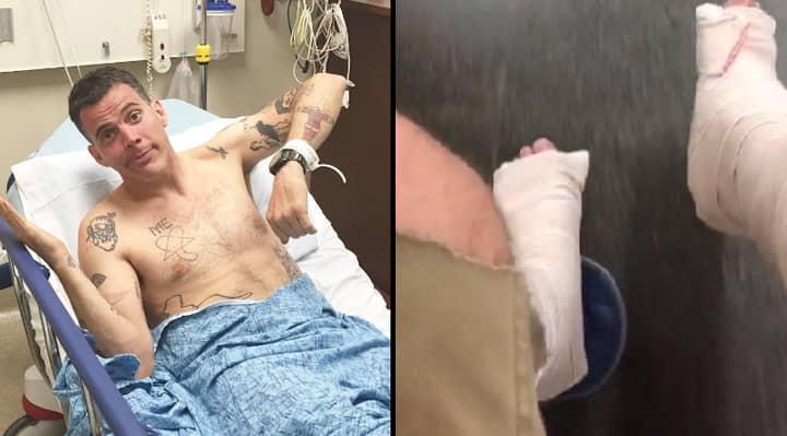 'Jackass' Star Steve-O Has Broken Both His Legs Doing A Stunt