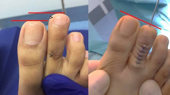 Toe Shortening Is A Thing And It's More Common Than You Think