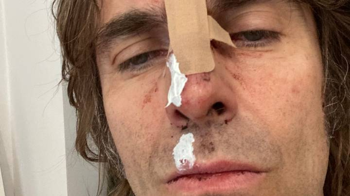 Liam Gallagher Reveals Injuries After Falling Out Of A Helicopter