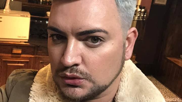 Former Alan Carr Lookalike Spent £20,000 On Cosmetic Procedures To Break Into TV