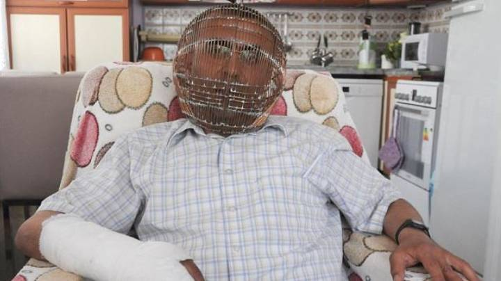 Man Locks His Head In Cage In Attempt To Stop Smoking